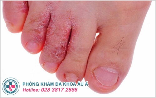 Nổi mụn nước ở chân là bị bệnh gì ?