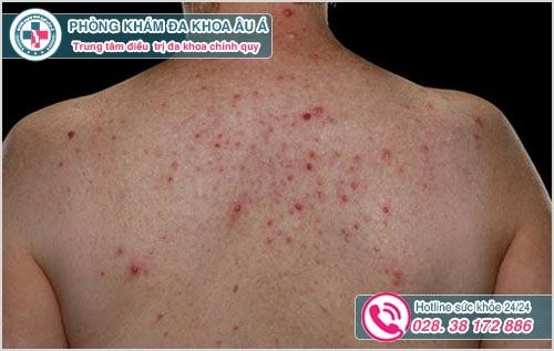 Nổi mụn ở lưng là dấu hiệu bệnh gì? Nguyên nhân và cách chữa
