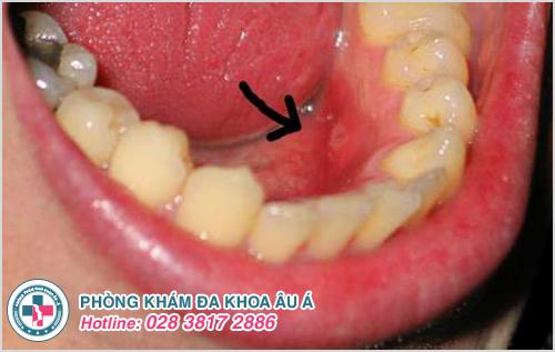 Nổi mụn thịt trong miệng là mắc bệnh gì?