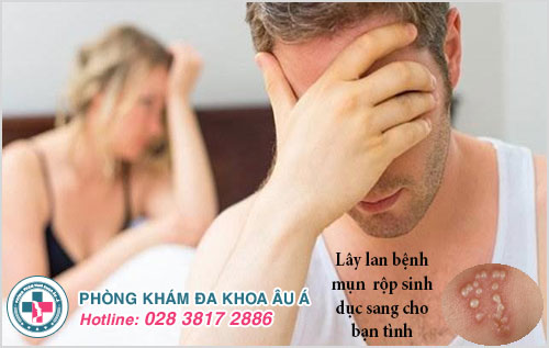 Bệnh mụn rộp sinh dục nguy cơ lây lan cho bạn tình