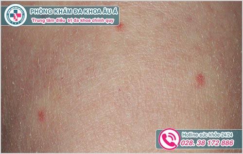 Nổi nốt đỏ trên da và ngứa là dấu hiệu bệnh gì?