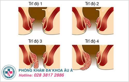 Các cấp độ của bệnh trĩ nội