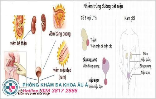 Bệnh nhiễm trùng đường tiểu gây ra hiện tượng nước tiểu màu đỏ