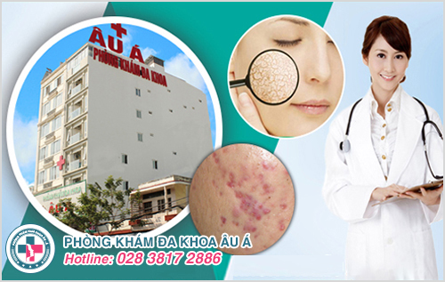 Chi phí khám chữa bệnh da liễu tại bệnh viện Da Liễu Đồng Tháp