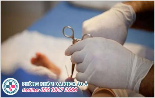 Được tiến hành bằng các giai đoạn gây mê, gây tê dương vật rồi dùng dao tiệt trùng cắt đi phần da bao quy đầu dài-hẹp