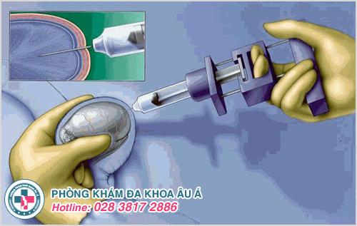 Phương pháp điều trị vô sinh khi nam giới không có tinh trùng
