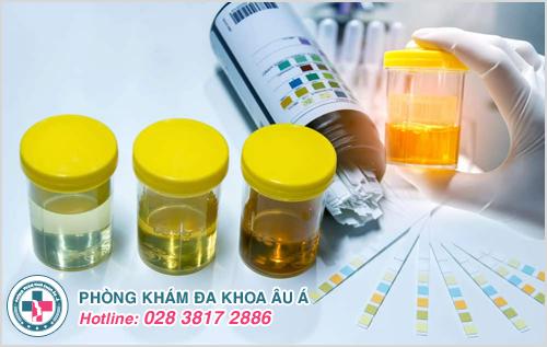 Phương pháp xét nghiệm viêm tuyến tiền liệt chính xác hiện nay