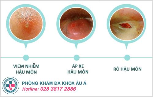Bệnh rò hậu môn: Nguyên nhân, biểu hiện và cách điều trị hiệu quả