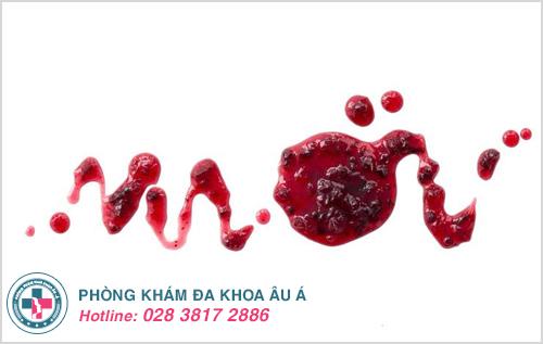Rong kinh ra máu cục : Nguyên nhân và cách điều trị