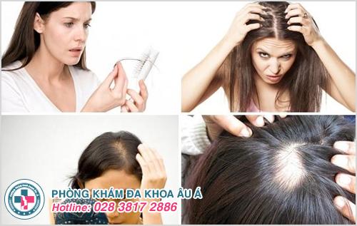 Rụng tóc nhiều là dấu hiệu bệnh gì?