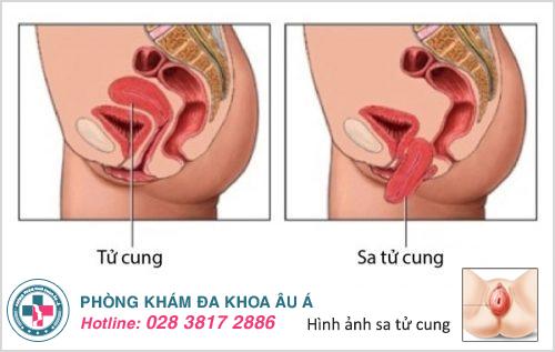Sa tử cung là gì? Nguyên nhân Dấu hiệu và Điều trị