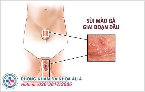 Sùi mào gà giai đoạn đầu: Nguyên nhân biểu hiện cách chữa