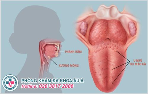 Sùi mào gà ở lưỡi: Hình ảnh nguyên nhân biểu hiện cách trị