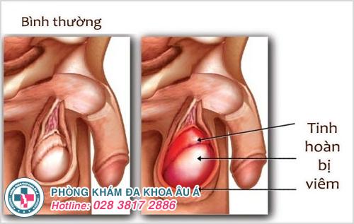 Sưng tinh hoàn phải hoặc trái: Nguyên nhân Dấu hiệu Cách chữa