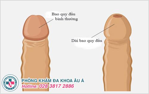 Tác hại của dài bao quy đầu đối với sức khỏe nam giới