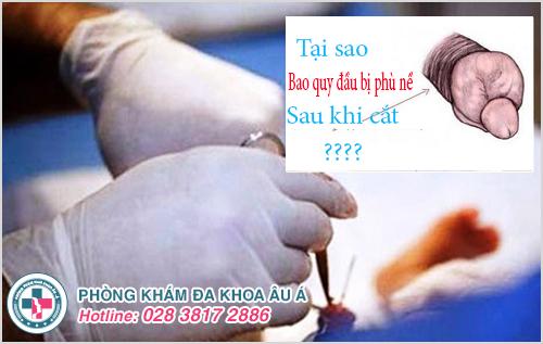 Tại sao cắt bao quy đầu bị phù nề và hướng xử lý