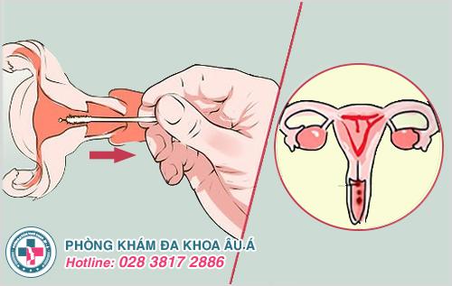 Tháo vòng tránh thai có bị chảy máu hay không?