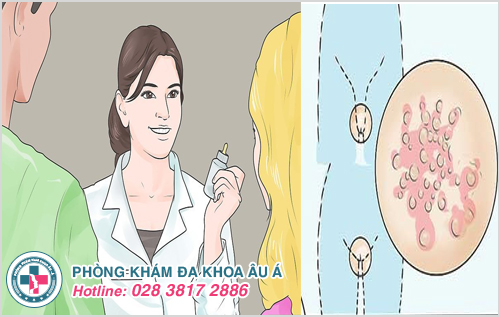 Thuốc chữa bệnh mụn rộp sinh dục an toàn và hiệu quả