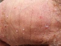 Thường xuyên ngứa đầu dương vật là biểu hiện bệnh gì?