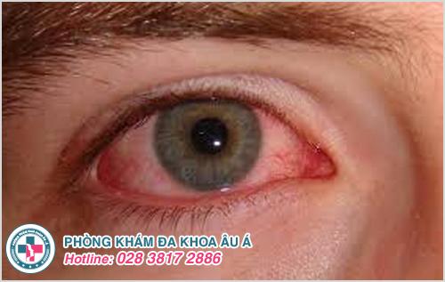Thủy đậu mọc trong mắt : Nguyên nhân dấu hiệu cách trị