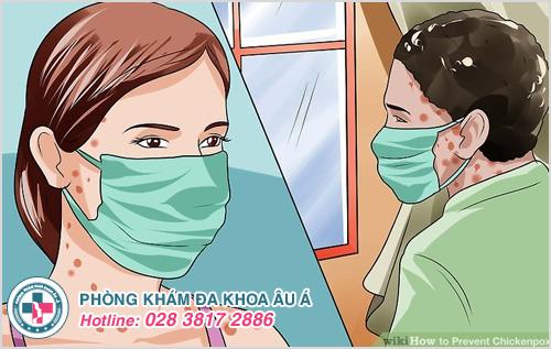 Thủy đậu mọc trong miệng : Nguyên nhân dấu hiệu cách trị
