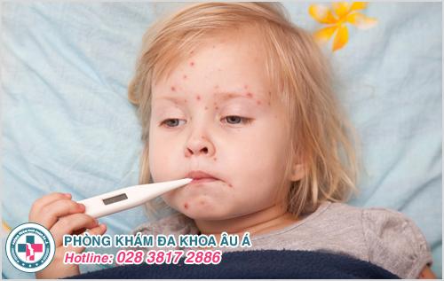 Thủy đậu ở trẻ em : Hình ảnh nguyên nhân dấu hiệu cách chữa