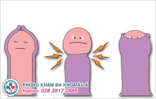 Tìm hiểu về các bệnh liên quan đến bao quy đầu