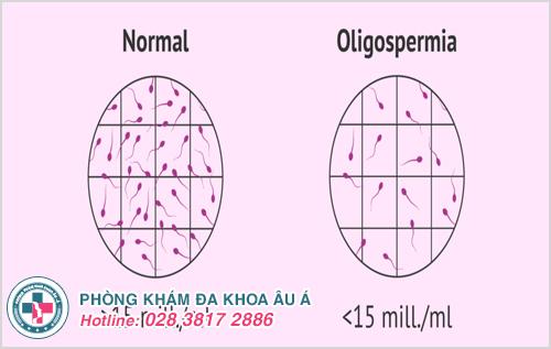 Tinh trùng loãng là gì? Hình ảnh nguyên nhân dấu hiệu cách chữa