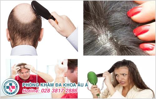 Tóc rụng nhiều phải làm sao?