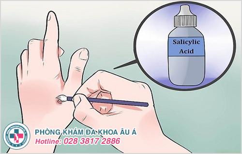 Trị mụn cóc bằng axit có đau rát không?