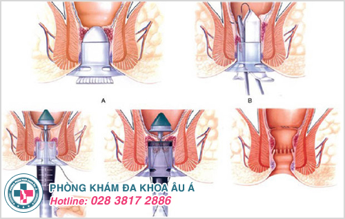 Phẫu thuật cắt búi trĩ công ngệ xâm lấn tối thiểu