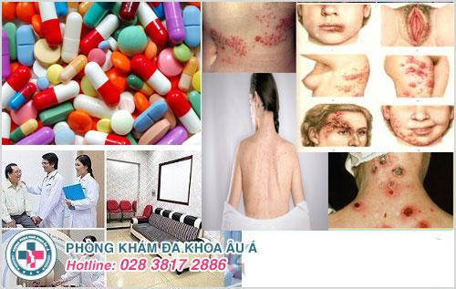 Triệu chứng bệnh giang mai ở nữ và cách điều trị hiệu quả