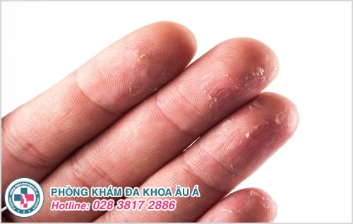 Tróc da đầu ngón tay là bệnh gì? Nguyên nhân và Cách chữa