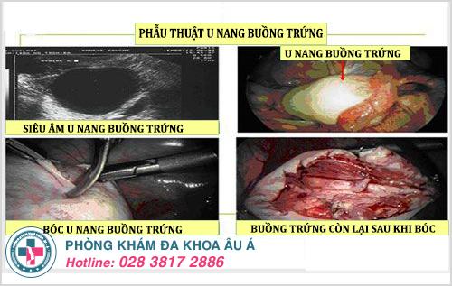 Hình ảnh u nang buồng trứng trên siêu âm và phẫu thuật