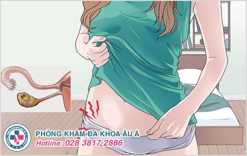 U nang buồng trứng phải: Nguyên nhân dấu hiệu và cách trị