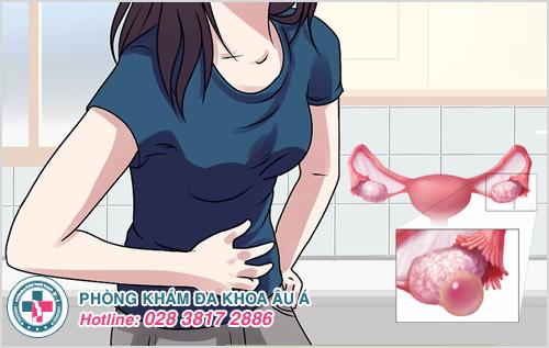 U nang buồng trứng xuất huyết: Nguyên nhân dấu hiệu cách trị