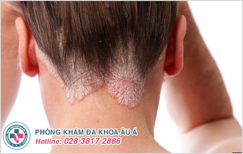Vảy nến da đầu : Nguyên nhân dấu hiệu và cách điều trị