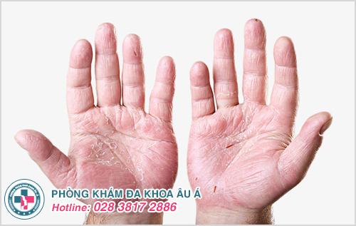 Vẩy nến da tay : Nguyên nhân dấu hiệu và cách điều trị