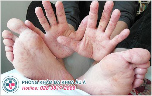 Viêm da bóng nước ở trẻ em : Nguyên nhân dấu hiệu cách trị