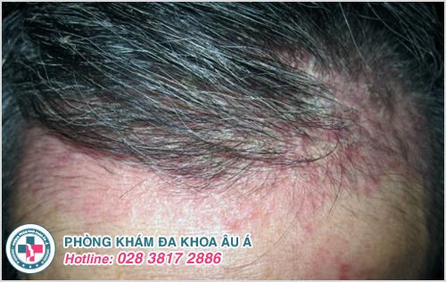 Viêm da đầu : Hình ảnh nguyên nhân dấu hiệu cách điều trị