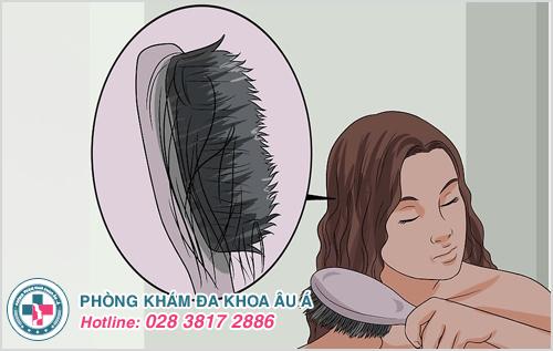 Viêm da đầu gây rụng tóc thì phải làm sao?