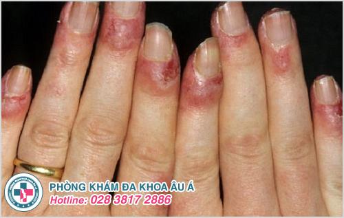 Viêm da đầu ngón tay: Hình ảnh nguyên nhân dấu hiệu cách trị