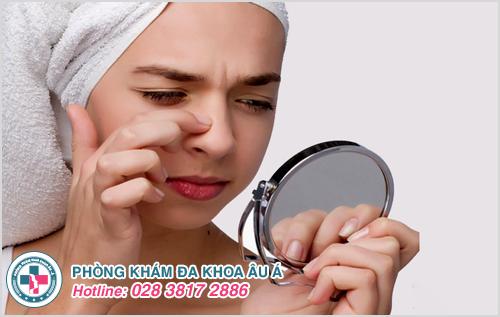 Viêm da dầu ở cánh mũi: Nguyên nhân dấu hiệu cách trị