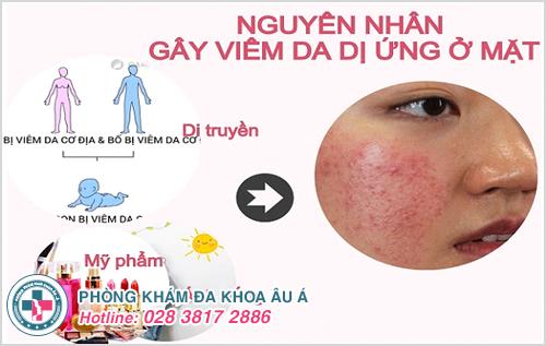 Viêm da dị ứng ở mặt: Nguyên nhân dấu hiệu cách điều trị