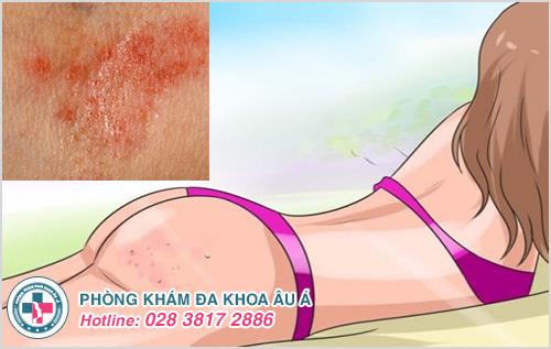 Viêm da mông : Hình ảnh nguyên nhân biểu hiện cách điều trị