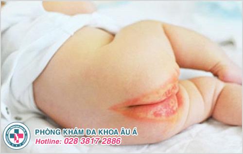 Viêm da mủ ở trẻ em : Hình ảnh nguyên nhân biểu hiện cách trị