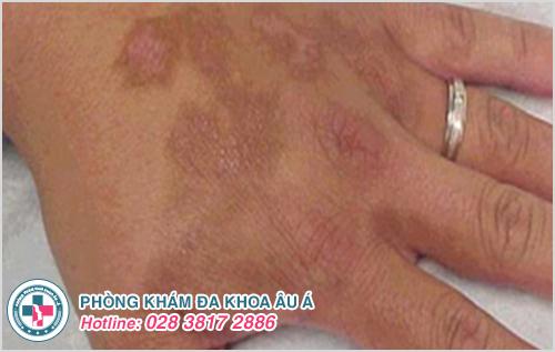 Viêm da ở tay : Hình ảnh nguyên nhân dấu hiệu cách điều trị