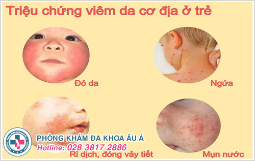 Viêm da ở trẻ : Nguyên nhân dấu hiệu cách điều trị