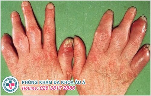 Viêm khớp vảy nến : Nguyên nhân dấu hiệu và cách điều trị