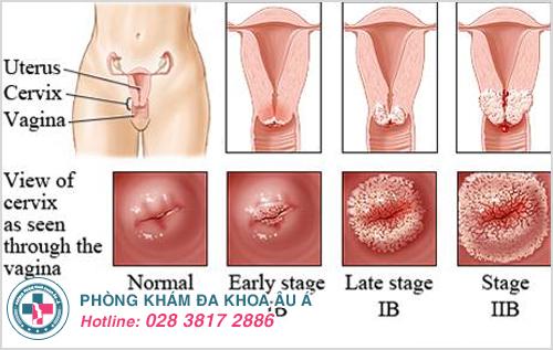 Viêm lộ tuyến cổ tử cung thường được chia thành 3 cấp độ chính